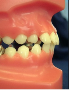 khớp cắn và chức năng khớp cắn của hàm răng