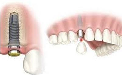 Nhổ răng kết hợp Cấy ghép Implant chỉ trong 1 lần phẫu thuật