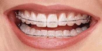 nắn chỉnh thành hàm răng đẹp