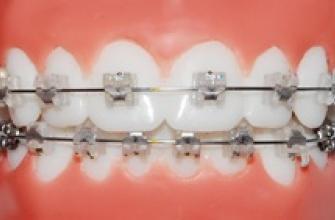các loại mắc cài trong nắn chỉnh răng