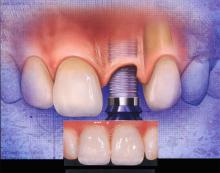 các thành phần hàm khung răng giả