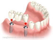 implant nha khoa trường hợp mất nhiều răng