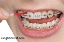 công nghệ nắn chỉnh răng hiện đại