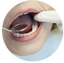 kỹ thuật nhổ răng bằng cách chia chân
