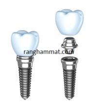 phẫu thuật cấy implant