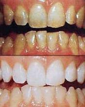 răng ngả màu